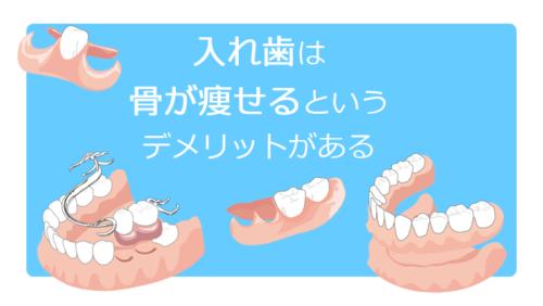 入れ歯は骨が痩せるというデメリットがある
