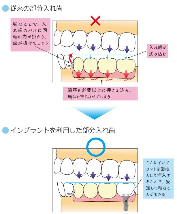 通常の部分入れ歯とインプラントを利用した部分入れ歯