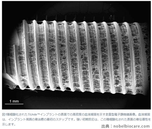 インプラントが骨と結合