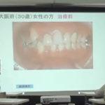 【動画】上の前歯にインプラントを埋入した症例