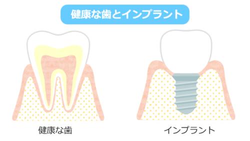 健康な歯とインプラント