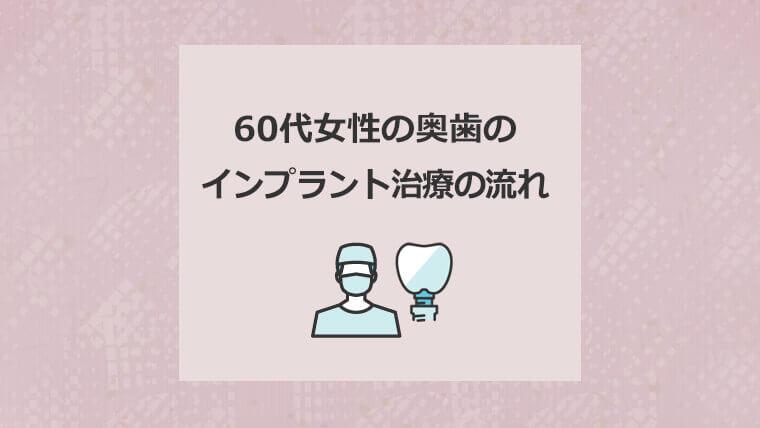 60代女性の奥歯のインプラント治療の流れ