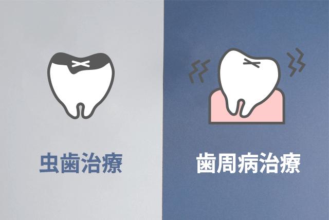 虫歯治療と歯周病治療